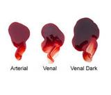 Kensington Gore Edible Blood